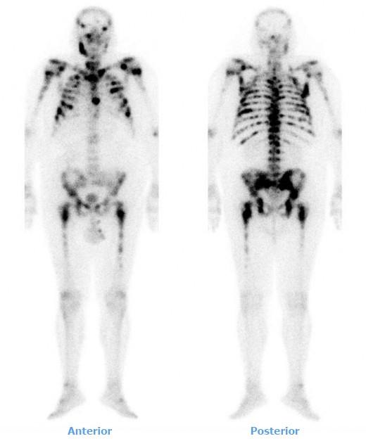 Diseminación ósea metastásica en paciente con carcinoma próstata