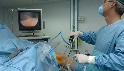 Los avances habidos en el campo de la cirugía de rodilla